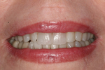 Brightening-Teeth-After-Image