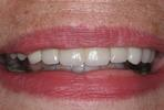 Leveling-Crooked-Teeth-After-Image