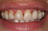 Comfortable-Attractive-Dentistry-Before-Image