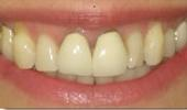 Discoloration-from-Crowns-Before-Image