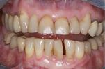 Major-Dentistry-Before-Image
