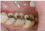 Replacing-Defective-Fillings-Before-Image