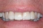 Straighter-Teeth-After-Image