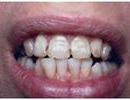 Leveling-Crooked-Teeth-Before-Image