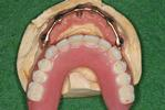 Implant-Supported-Dentures-Before-Image