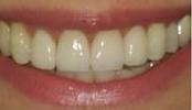 Discoloration-from-Crowns-After-Image