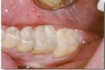 Replacing-Defective-Fillings-After-Image